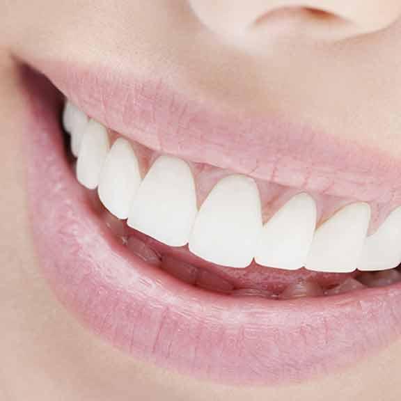 Solucion Dental Colombia - cuidado de su boca
