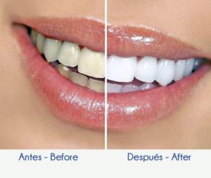 Solución Dental - Diseño de Sonrisa