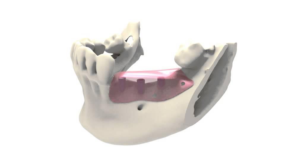 Regeneración Ósea - Solución Dental