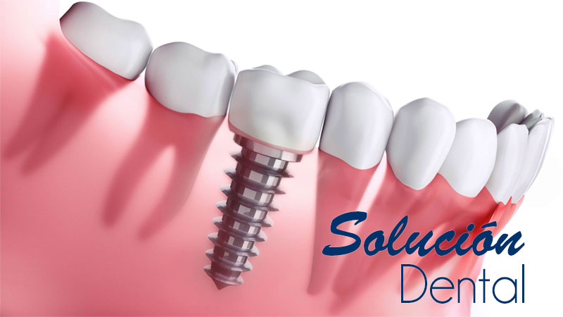 Solución Dental implantes dentales