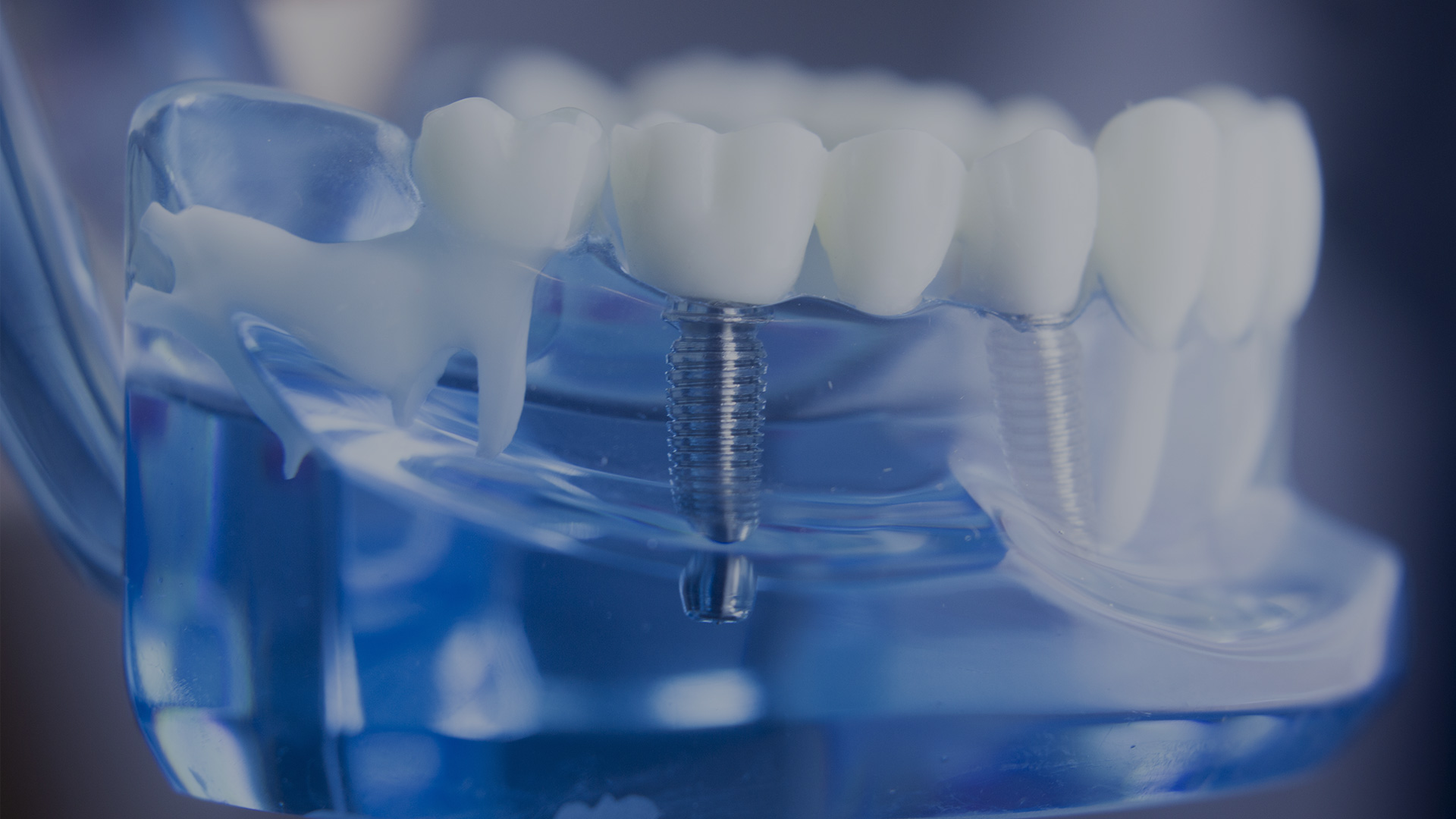 Solución Dental - Odontolgía estética especializada - Aclaram