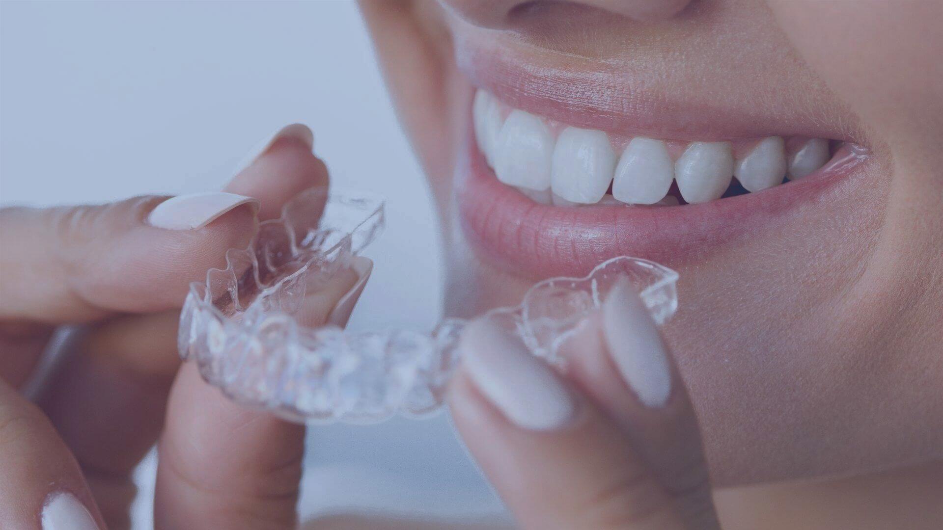 Solución Dental - Odontolgía estética especializada - Ortodoncia